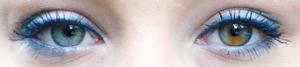 Sektorielle Heterochromie im linken Auge